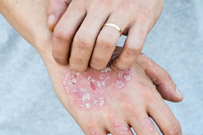 Man scratch oneself, dry flaky skin on hand with psoriasis vulgaris, eczema and other skin conditions like fungus, plaque, rash an. D patches. Autoimmune genetic royalty free stock images