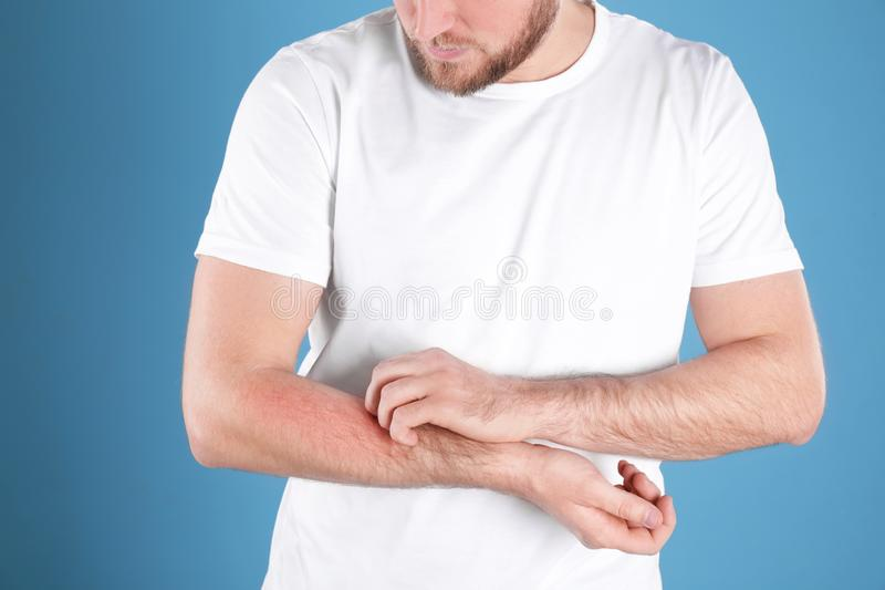 Man scratching forearm on color background. Allergy symptoms. Man scratching forearm on color background, closeup. Allergy symptoms stock image
