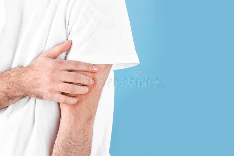 Man scratching hand on color background, space for text. Allergies symptoms. Man scratching hand on color background, closeup with space for text. Allergies stock images