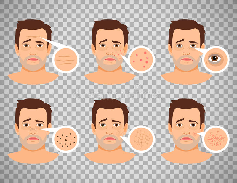 Man skin problems. Vector illustration. Male face with pimples and dark spots, wrinkles and acne isolated on transparent background stock illustration