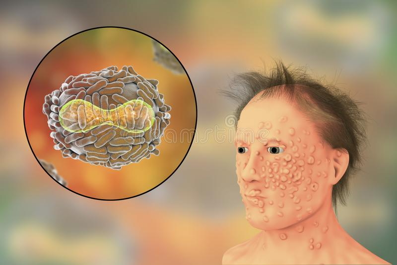 A man with smallpox infection and variola virus, a virus from Orthopoxviridae family that causes smallpox. Highly contagious disease eradicated by vaccination vector illustration