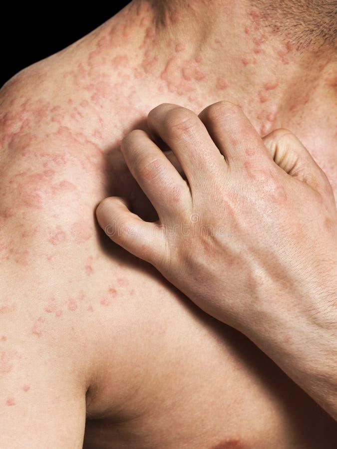 Man som skrapar allergisk hud royaltyfria bilder