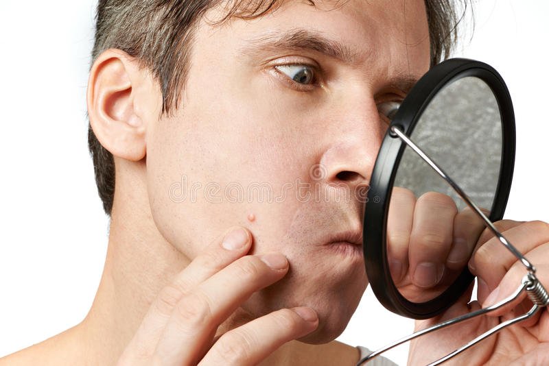 Man squeezing a pimple. Men squeezing a pimple on white background royalty free stock photography