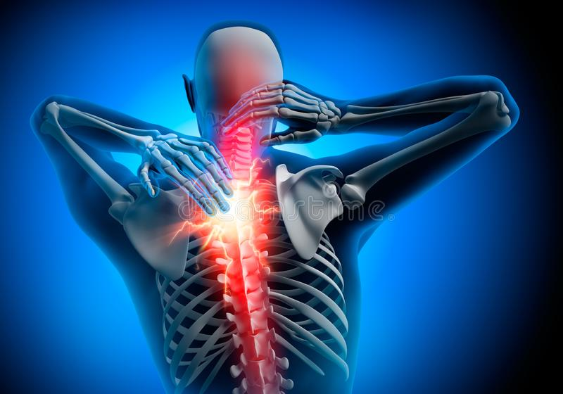 Man with strong pain symptoms in neck stock illustration