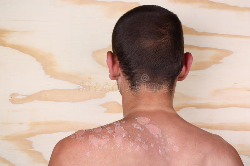 Man with a sunburn. Sunburn back from a man and peeling skin royalty free stock photo