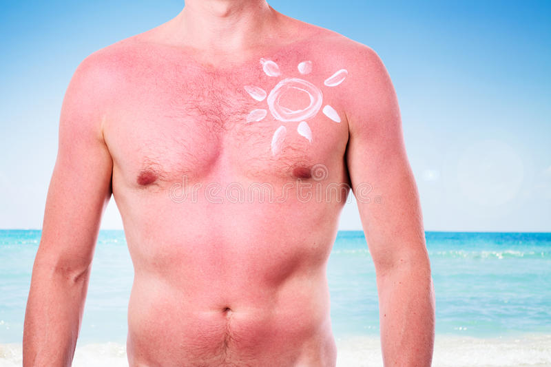 Man with a sunburn. Isolated on white background stock image