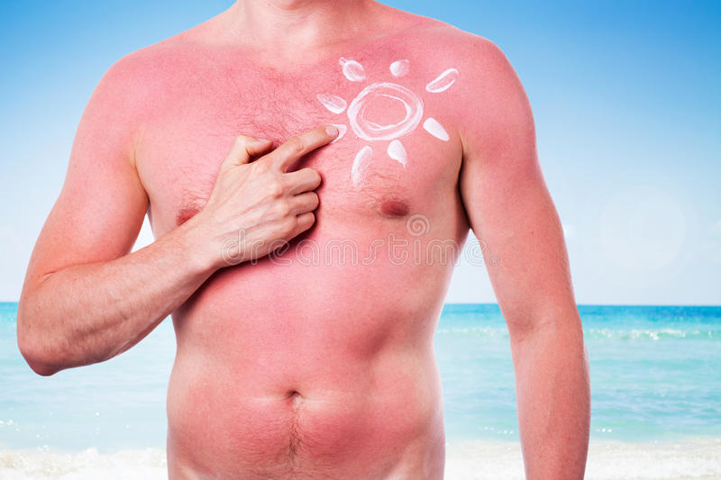 Man with a sunburn. Isolated on white background royalty free stock images
