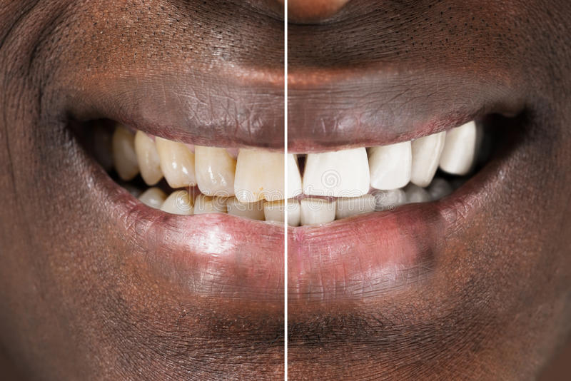 Man Teeth Before And After Whitening royalty free stock photo
