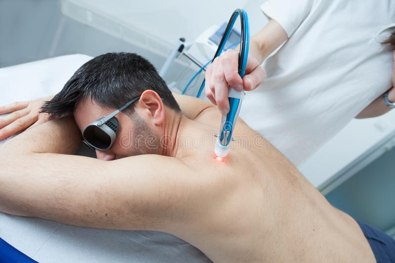 Pain Relief and Healing with Laser Therapy. A man undergoes laser treatment against skeletal muscle pain, laser can reduce inflammation in damaged tissues, relax royalty free stock image