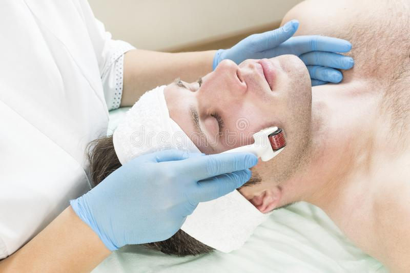 Man undergoes the procedure of medical micro needle therapy with a modern medical instrument derma roller. The man undergoes the procedure of medical micro stock image