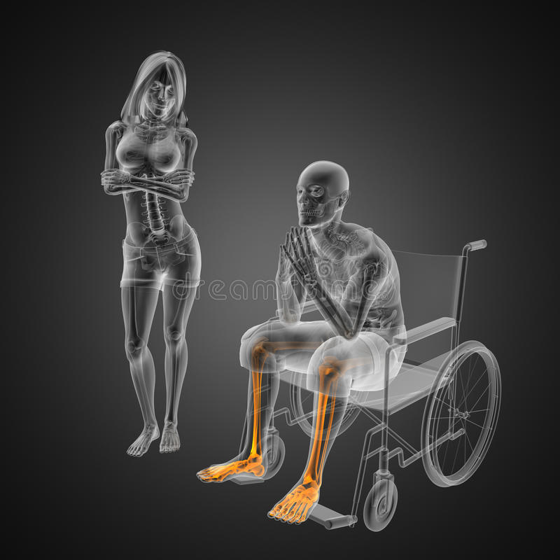 Download Man In Wheelchair Royalty Free Stock Photos - Image: 23362188