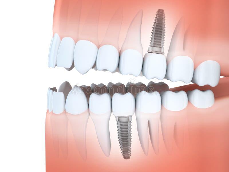 Mandíbula humano y implantes dentales ilustración del vector