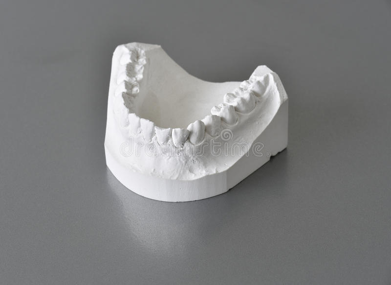 Mandible (lower jaw) orthodontic molds stock images