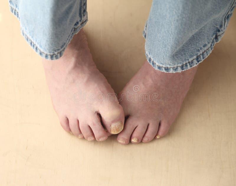 Manförsök att dölja hans toenailsvamp arkivfoton