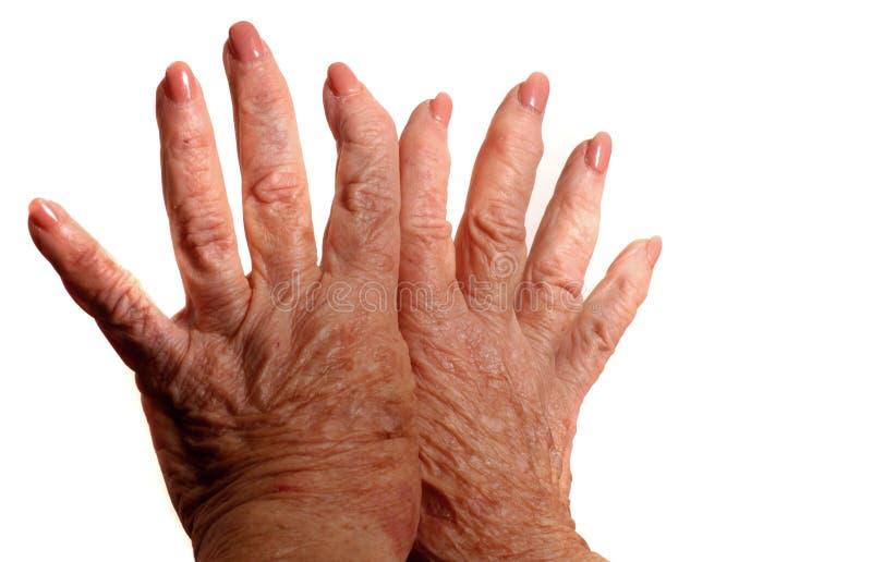 Mani artritiche immagini stock libere da diritti