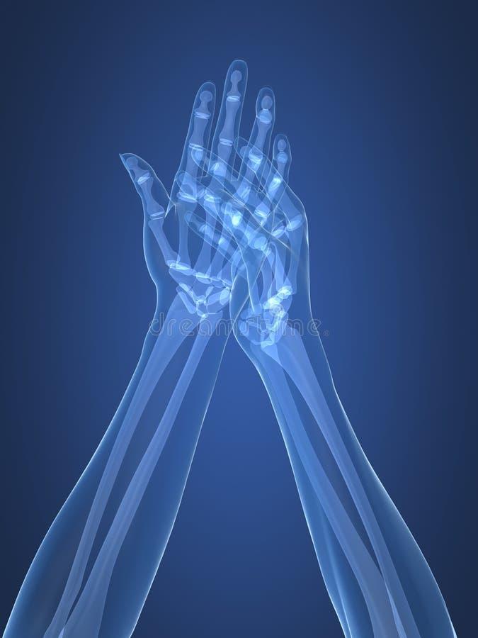Mani dei raggi X - artrite illustrazione vettoriale