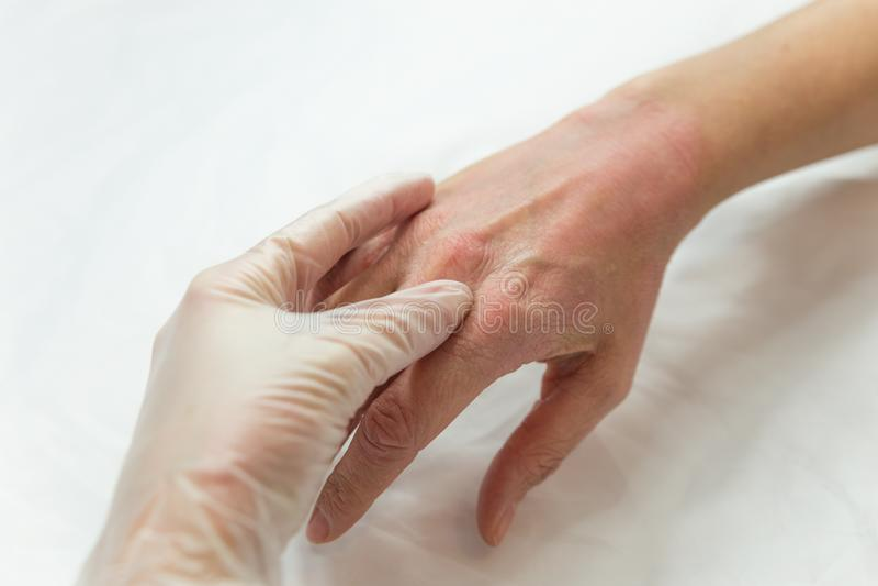 Mani della donna con i problemi di pelle immagini stock libere da diritti
