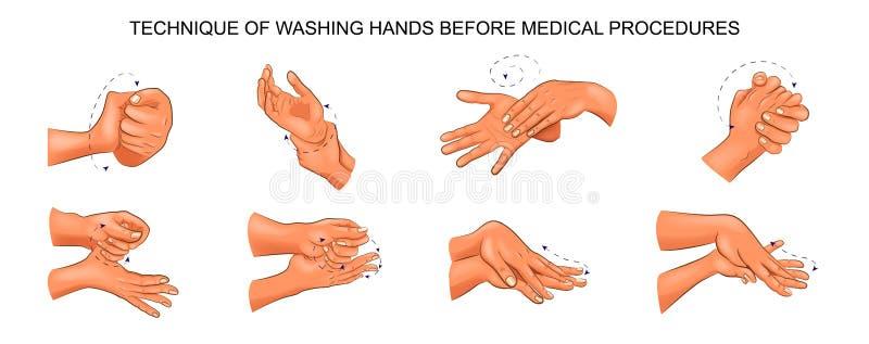 Mani di lavaggio prima delle procedure mediche illustrazione vettoriale