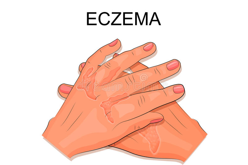 Mani di un paziente che soffre dall'eczema illustrazione vettoriale