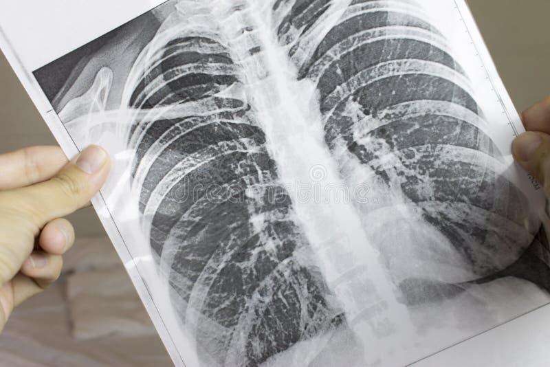 Mani potate che tengono fluorography, raggi x Concetto di desease del polmone immagine stock