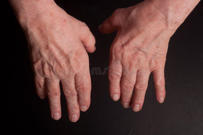 Mani senior. Soffrendo dal dolore e dal reumatismo fotografia stock libera da diritti