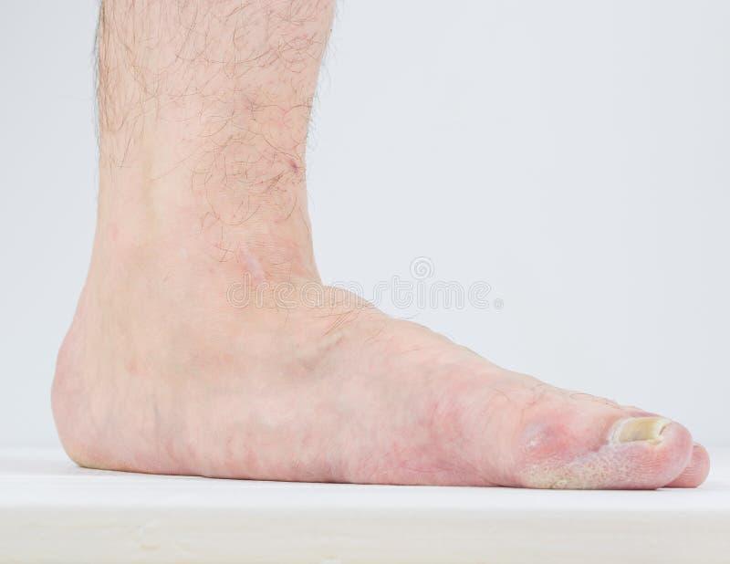 Manifestation des pieds plats et des maladies fongiques photos stock