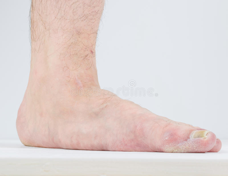 Manifestation Of Flat Feet And Fungal Diseases. Stock Image - Image ...