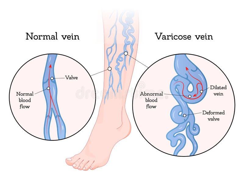 Manifesto delle vene varicose illustrazione di stock