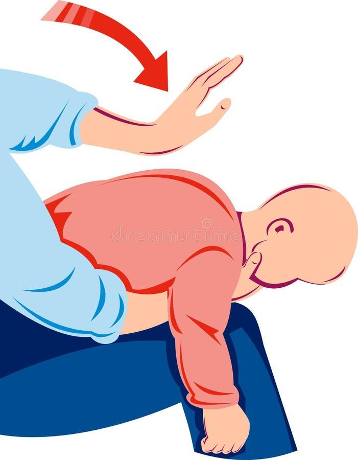 Maniobra de Heimlich en niño ilustración del vector