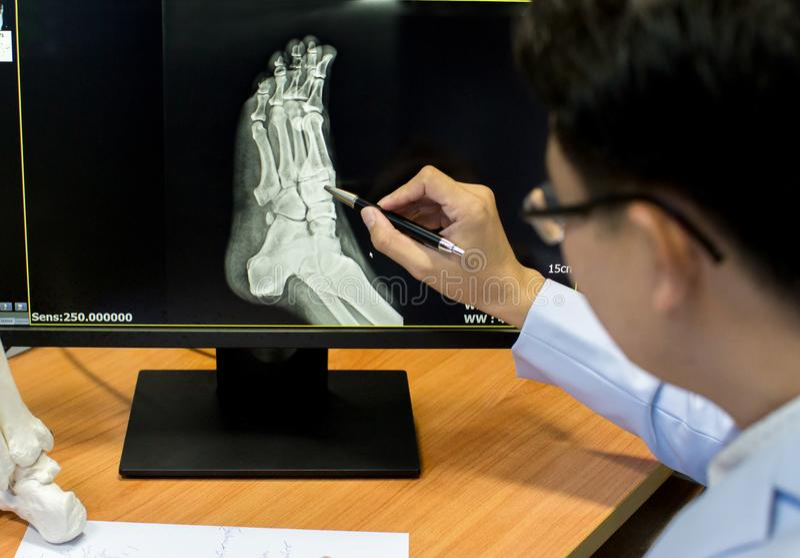 Manipulera att peka på fotproblempunkten på röntgenstrålefilmen fot för show för röntgenstrålefilm skelett- på filmen arkivfoto