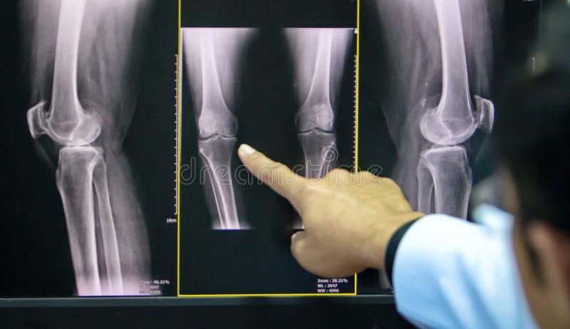 Manipulera att peka på knäproblempunkten på röntgenstrålefilmen knä för show för röntgenstrålefilm skelett- på filmen Medicinskt  arkivfoton