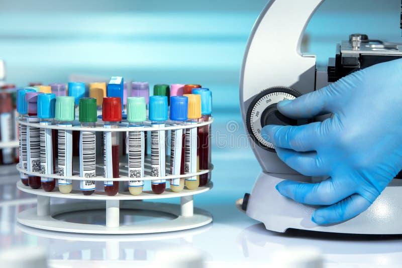 Manipulera att undersöka i mikroskopprövkopian av blodprovet i let royaltyfri foto