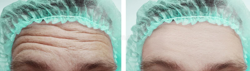 Manlig behandling för cosmetology för pannaskrynklor före och efter fotografering för bildbyråer