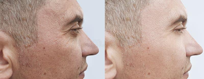 Manlig effekt för behandling för framsidaskrynklor före och efter arkivfoton