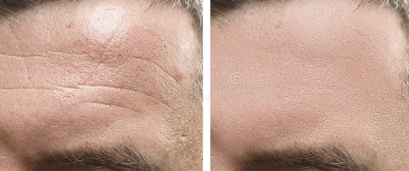 Manlig effekt för behandling för panna för framsidaskrynklaborttagning före och efter arkivbilder