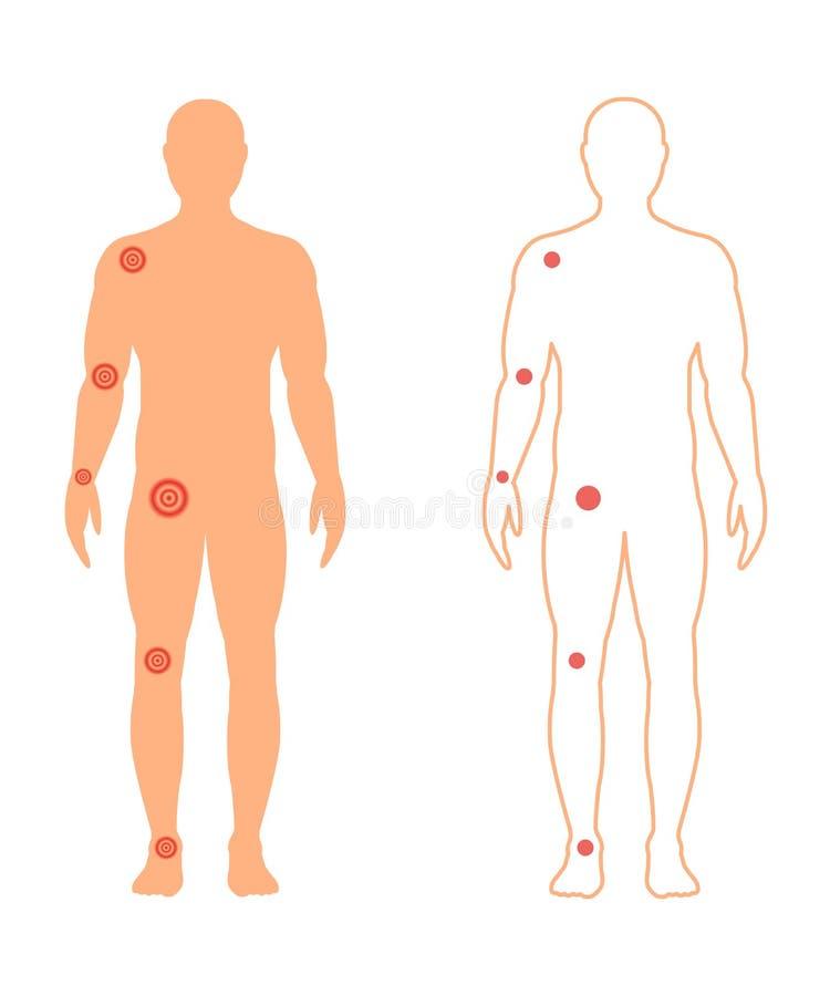 Manlig kontur med smärtsamma skarvar också vektor för coreldrawillustration vektor illustrationer