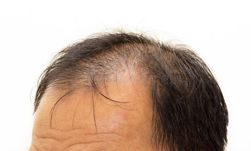Manligt huvud med sidan för tecken för hårförlust den främre arkivfoton