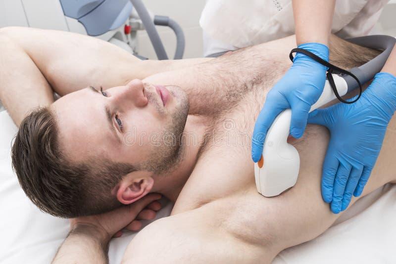 Mann auf dem Verfahren des Laser-Haarabbaus lizenzfreie stockfotografie
