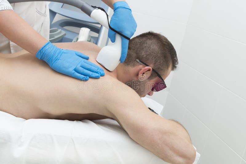 Mann auf dem Verfahren des Laser-Haarabbaus lizenzfreie stockbilder