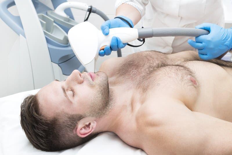 Mann auf dem Verfahren des Laser-Haarabbaus lizenzfreies stockfoto