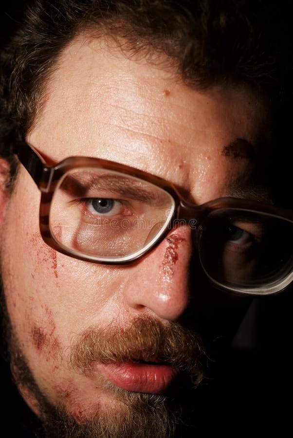 Mann auf Glas mit kleinen Wunden stockfotografie