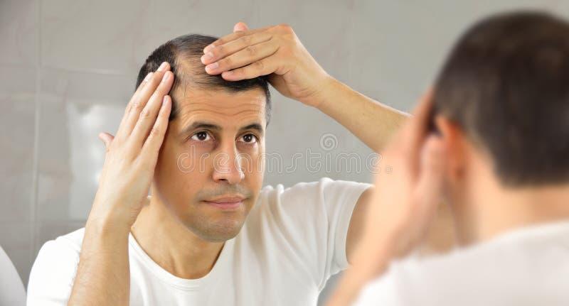 Mann, der seinen Haarausfall aufpasst stockfoto