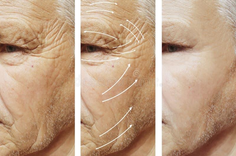 Mann, Falten auf Gesicht, Korrektur Cosmetology-Unterschiedpatient vor und nach Verfahren lizenzfreie stockfotos