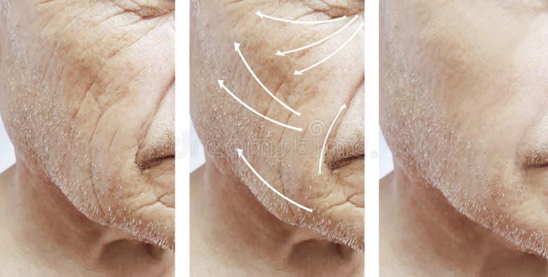 Mann, Falten auf Gesicht, Korrekturtherapie-Unterschiedpatient vor und nach Verfahren stockfoto