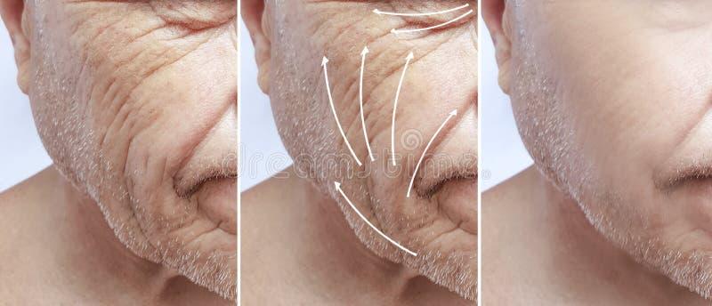 Mann, Falten auf Gesicht, Korrekturunterschiedpatient vor und nach Verfahren stockfotografie