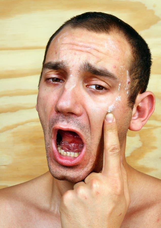 Mann mit angesteckter Haut auf dem Gesicht stockbild