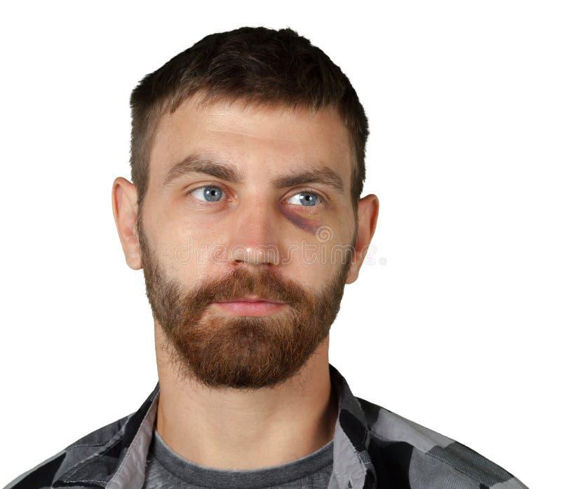 Mann mit Augenquetschung lizenzfreies stockbild