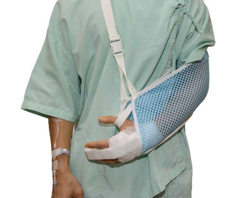Mann mit einem Arm im Gips stockbilder