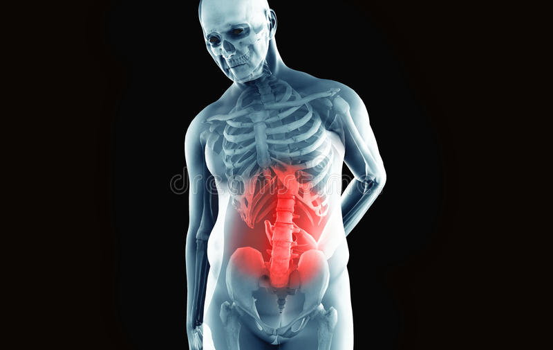 Mann mit niedrigeren Rückenschmerzen stock abbildung
