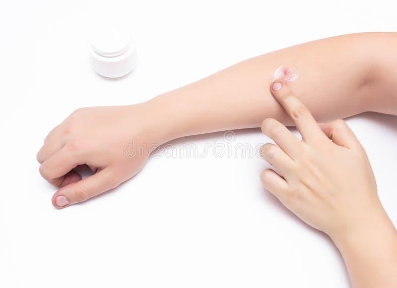 Mann schmiert eine medizinische Hormonsalbe mit einem grauen roten wunden Pickel auf seiner Hand, weißer Hintergrund, Kopienraum, lizenzfreies stockbild